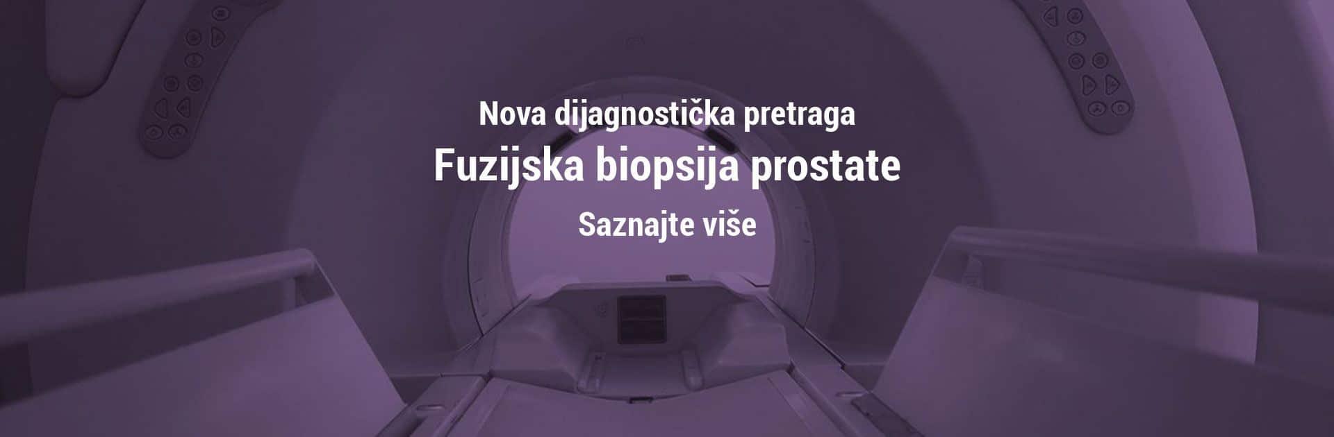 fuzijska biopsija prostate