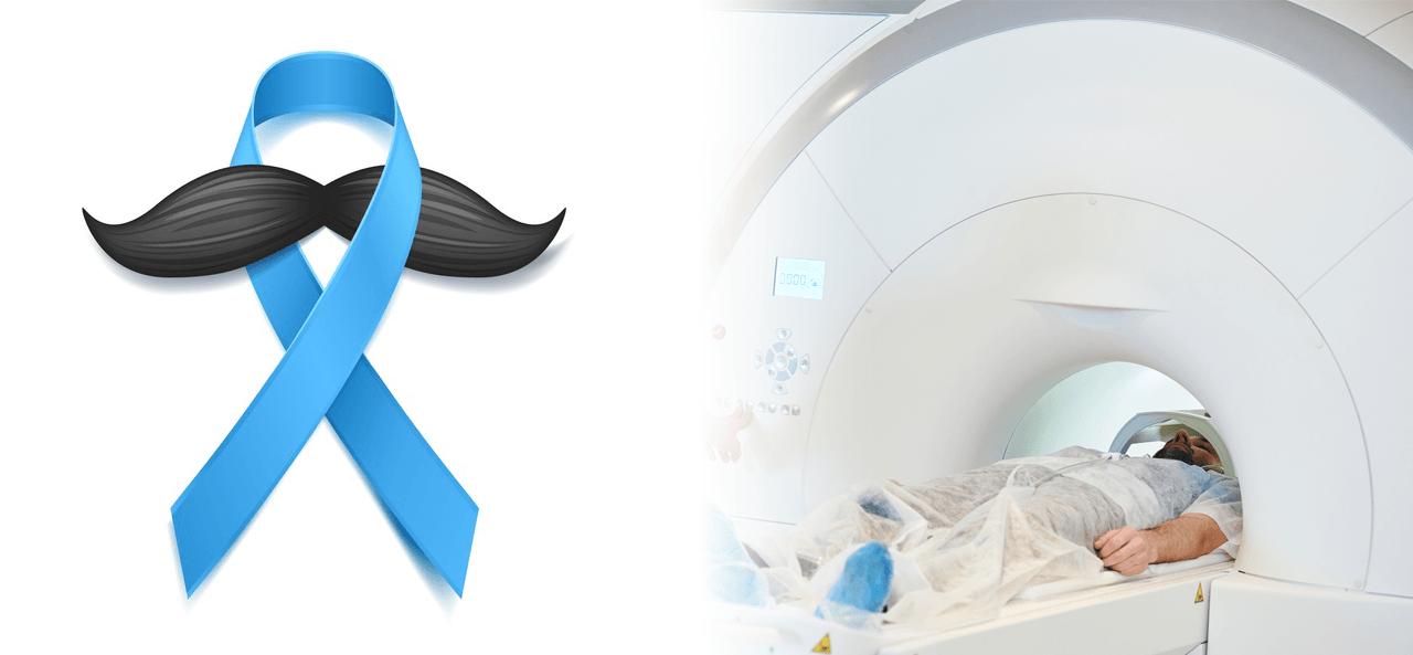 rak prostate - akcija